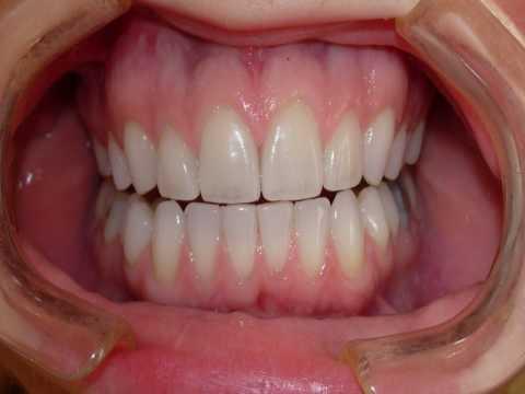 Los Angeles Dental Veneers