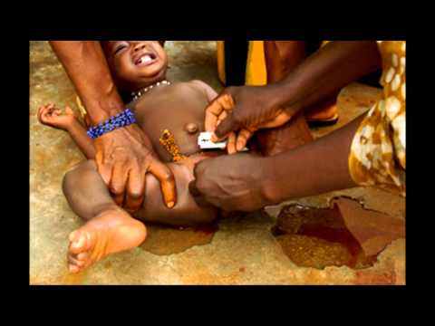Preventable Health Issues in Third World Countries