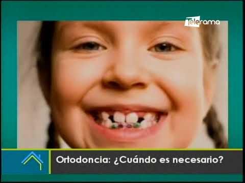 Ortodoncia ¿Cuándo es necesario?