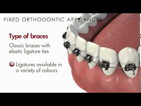 Malocclusion/Fixed Orthodontic Appliances(Braces)
