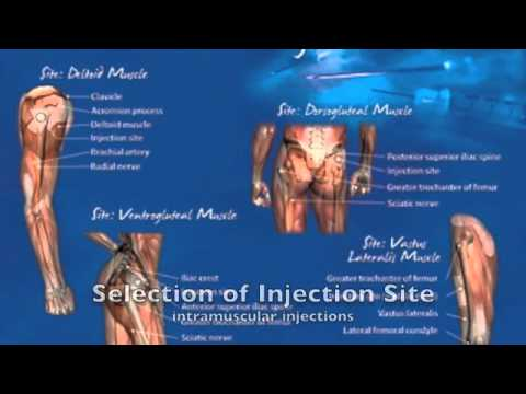 Intramuscular Testosterone Injection Techniques