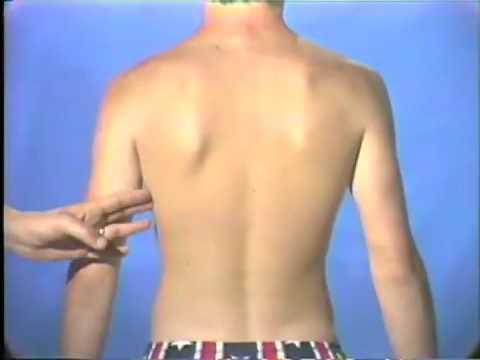 Lebendige Anatomie Anatomische Strukturen einer männlichen lebendigen Person. Orig. Datum: 25 Juni 74