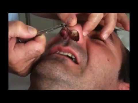 comment traiter un kyste sur le visage