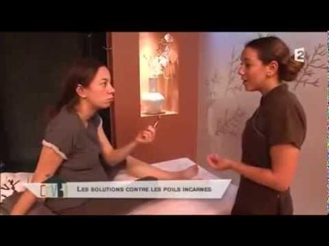 comment traiter poils incarnés