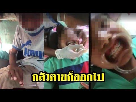 วิจารณ์หนัก!! เด็กไลฟ์สดจัดฟันเถื่อน | 13-06-60 | ThairathTV