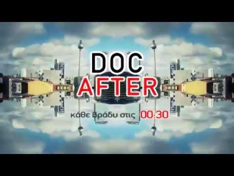 Trailer Doc After