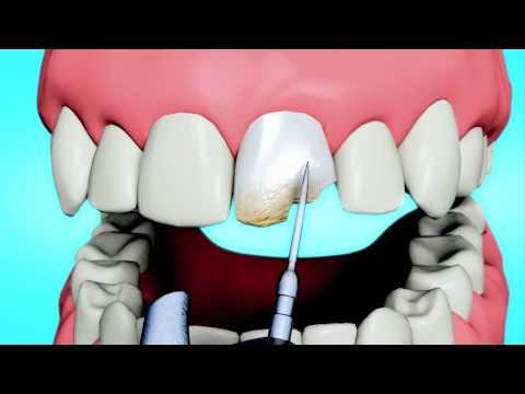 Dental Bonding vs. Dental Veneers - Orlando Cosmetic Dentist Dr. Paul Skomsky 407-374-2353
