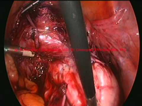 laparoscopic lyomyoma