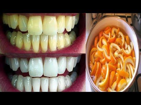 العرب اليوم - خليط فعّال لتبيض الأسنان من أول استعمال