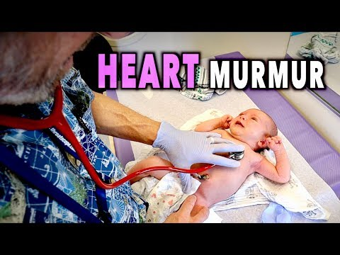 NEWBORN HEART MURMURS: What You Need to Know | Dr  Paul