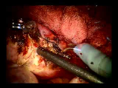 Hysterectomy Procedure after Multiple C-Sections