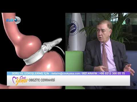 Obezite Cerrahisi - Prof. Dr. Alp Gürkan