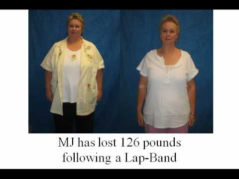 CLUBNEWYOU Before and After Weight Loss Surgery Pictures.4.avi