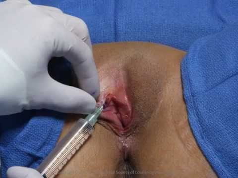 labia - Cosmetic vaginal surgery full-length DVD & more at http://www.iscgmedia.com. Also check out http://www.lvr-nj.com and http://www.youtube.com/user/mpelosi3 an...