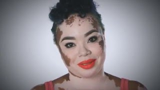 Dermatologists campaign to raise awareness and support for vitiligo