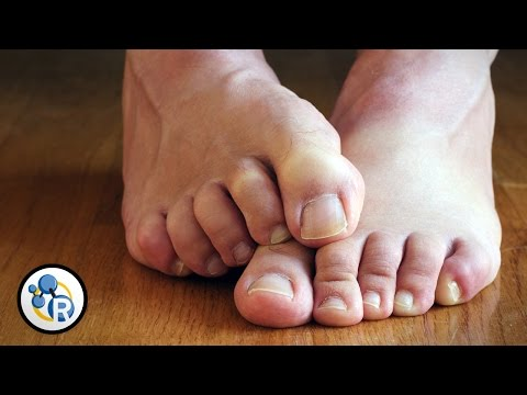Why Do Feet Smell?