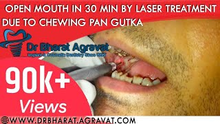 Mouth open treatment in 30 minutes by Laser Surgery