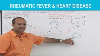 Rheumatic Fever & Rheumatic Heart Disease Pathology. Watch 700+ more videos at https://www.DrNajeebLectures.comIntroduction, etiology, pathophysiology and clinical manifestation In this video we have discussed in detail about: Introduction to Rheumatic FeverEtiology of Rheumatic FeverWhat are Special Streptococcal (Group A Streptococcal) InfectionsStreptococcal Sore throat and Reaction of Immune System Pathophysiology: Complications of Rheumatic FeverCNS involvement in Rheumatic FeverClinical Manifestation of Rheumatic FeverJoints Involvement in Rheumatic FeverDifference between Arthritis and ArthralgiaSkin Involvement in Rheumatic FeverSubcutaneous tissue involvement in Rheumatic Fever Rheumatic Fever Causing Cardiac Problems Rheumatic heart diseaseRheumatic pericarditis Rheumatic myocarditis Anitschkow cells Aschoff giant cellsRheumatic endocarditisRheumatic vegetationsChronic rheumatic heart diseaseDr. Najeeb Lectures are the World's Most Popular Lectures on Basic Medical Sciences watched by millions of Medical, Dentistry, Nursing and Pharmacy students.Here on YouTube we only post our Free Sample Videos. Sign up for PRO Membership to watch 700+ videos on Anatomy, Neuroanatomy, Embryology, Histology, Physiology, Biochemistry, Genetics, Pharmacology, Microbiology, Immunology and Pathology all recorded by Dr. Najeeb. ─────────────────────────★★★ WHY PRO MEMBERSHIP? ★★★─────────────────────────► 700+ videos Lectures.► Basic Medical Sciences videos.► Clinical Medicine videos.► New videos every week in HD.► Download videos for offline access.► Watch videos at 1.5x fast speed.► Watch videos on any device.► Fanatic customer support.► Trusted by 800K+ students.Visit our website at https://www.DrNajeebLectures.com Tags: fever (symptom) usmle step 1 comlex health (industry)