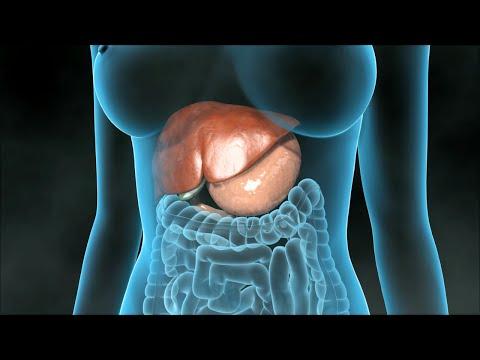 Hoe wordt de galblaas verwijderd of wel cholecystectomie?