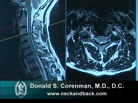 How to Read a MRI of Cervical Nerve Compression   Neck Pain   Colorado Spine Surgeon