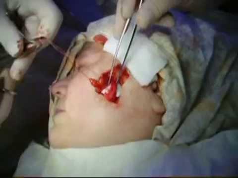 Пластика ромбовидного дефекта ротационным лоскутом