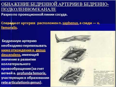 повреждения сосудов при травмах нижних конечностей