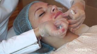 Плазмотерапия лица и волосистой части головы vz3