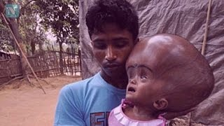 Omg!! Find Out Why This Bangladeshi 2-Year-Old Boy Has 22Lbs Big Head