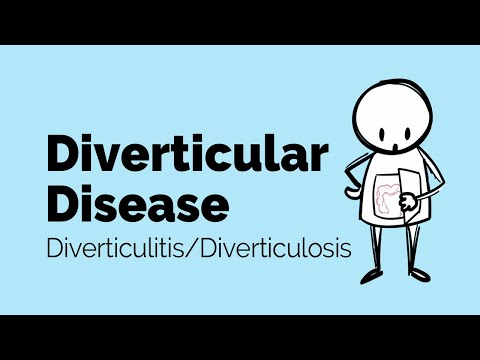Diverticular Disease | Diverticulitis | Gastrointestinal Society