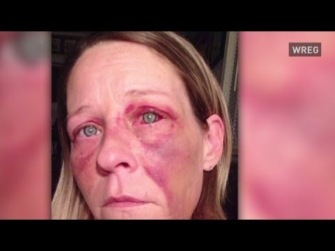 Woman posts abuse photos to help others