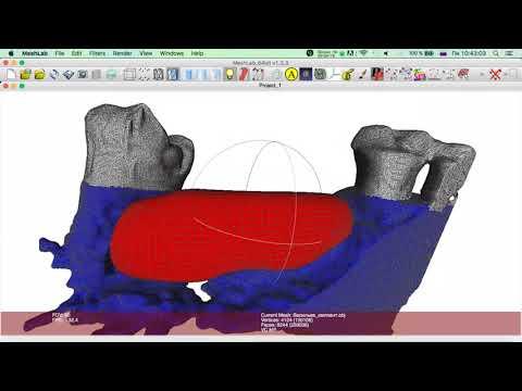 Создание высокоточной трех-мерной модели индивидуаль-ного блока. Часть 16