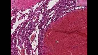 Histopathology Breast, soft tissue--Hemangioma