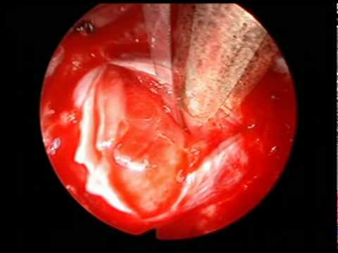 PRLoma - Less Invasive Endoscopic Treatment