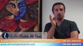 Op. Dr. Mustafa Ali Yanık kapalı teknik burun estetiği sonrası iz kalır mı