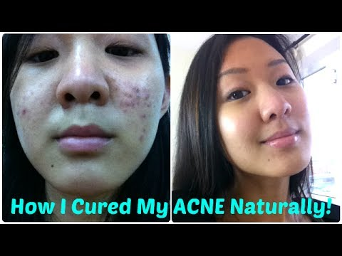 How I Cured My ACNE Naturally (10 Tips)