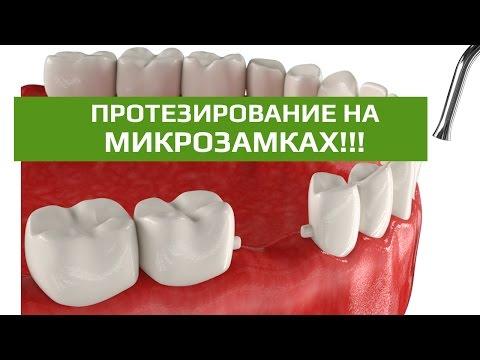 Зубной мост на микрозамках