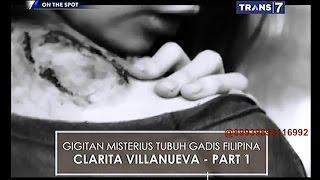 Video On The Spot - Gigitan Misterius Tubuh Gadis Filipina Clarita Villanueva part1 MP3, 3GP, MP4, WEBM, AVI, FLV November 2018