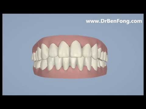Invisalign Results for Jie W.| Before & After | www.invisalignresults.ca
