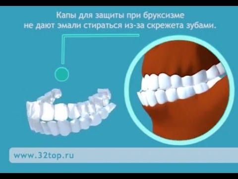 Капы для зубов. Виды
