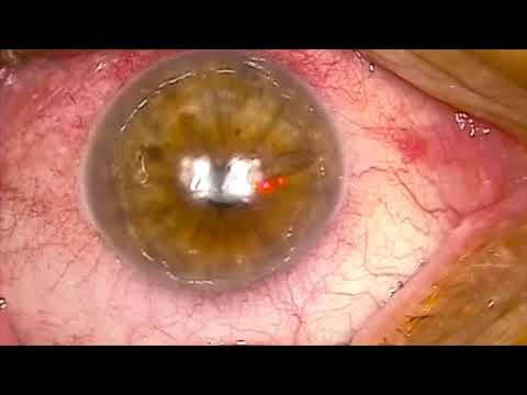 Photo-therapeutic Keratectomy for Recurrent Erosion Syndrome