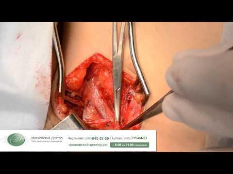 Комбинированная флебэктомия при трофических изменениях голени
