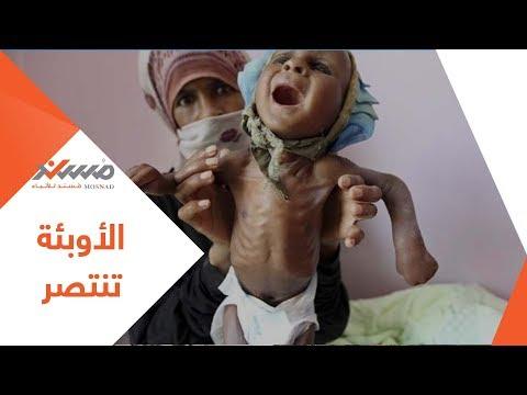 الأمراض والأوبئة تنتصر في اليمن .. شاهد