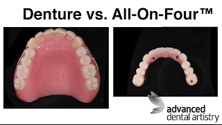 Dentures vs All-on-4