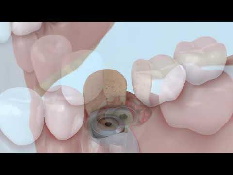 Операция №8 Удаление зуба с имплантацией с дефектом стенки