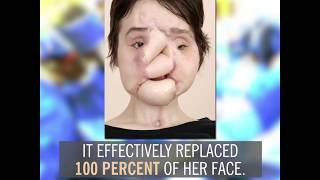 Katie Stubblefield's Face Transplant | By the Numbers