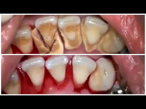 Cara Merontokkan Karang Gigi Dengan CEPAT Secara ALAMI