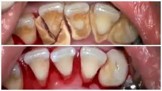 Video Cara Merontokkan Karang Gigi Dengan CEPAT Secara ALAMI MP3, 3GP, MP4, WEBM, AVI, FLV Februari 2018