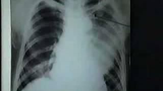 Video hình ảnh Viêm Phổi Thùy.