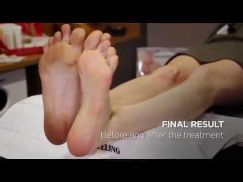 Fußpflege: Hornhaut an den Füßen entfernen mit Calluspeeling-Ultra