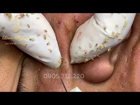 MEMORIES_remove BLACKHEADS 21 | Loan Nguyen